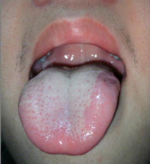 舌头下看病症大全图解