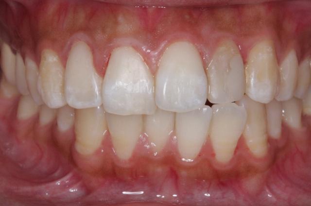 3mz350纳米树脂贴面前牙美牙